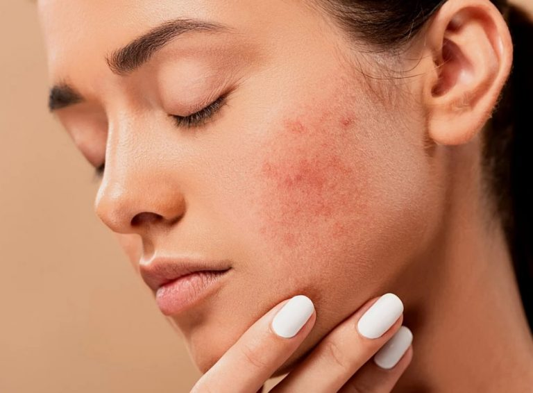 What Can You Do About Cystic Acne Scars Years Later